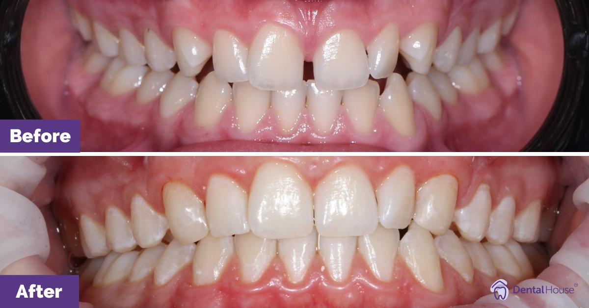 Dental House Group  Sharon B Smile Makeover Journey