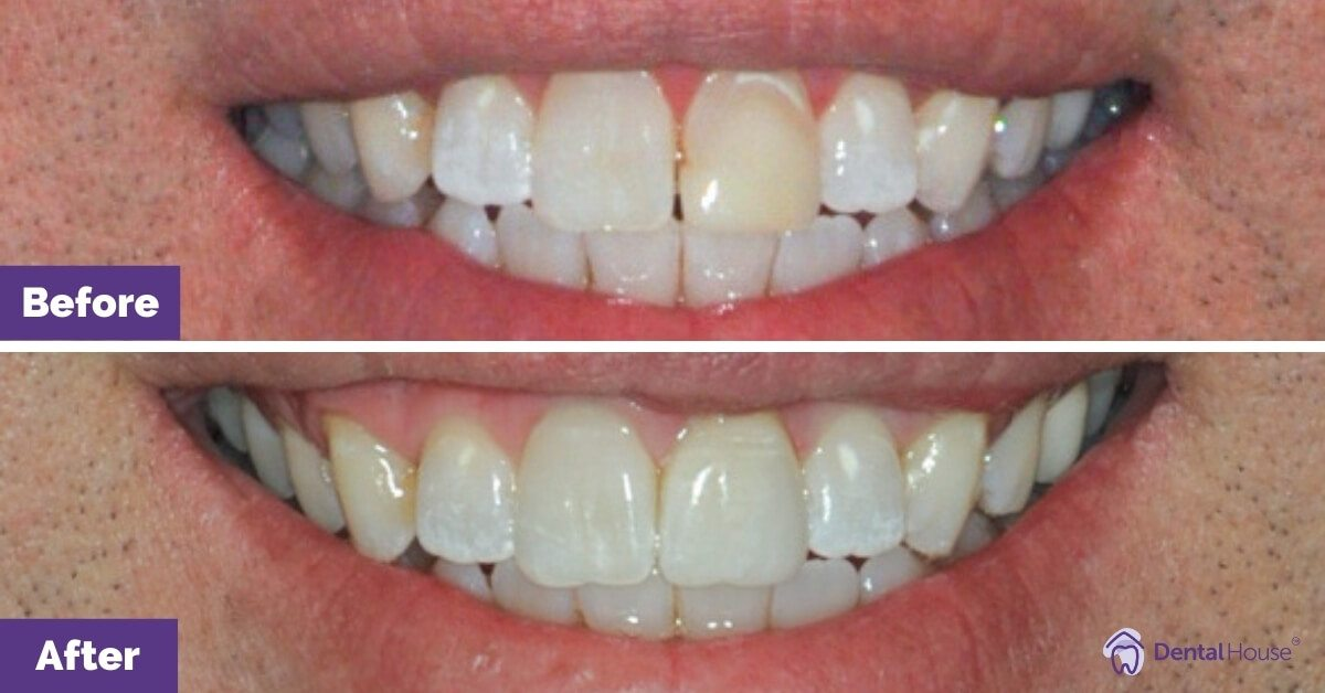 Dental-House-Group_Mitchell-Smile-Makeover-Journey