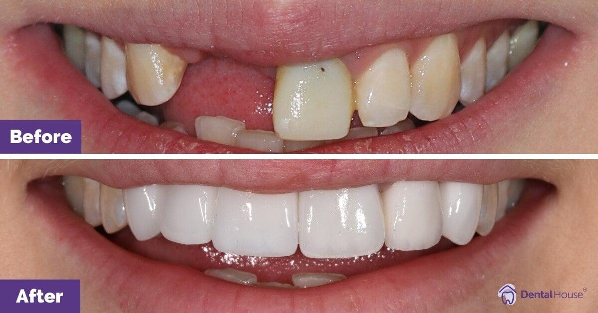 Jessica-Dental-Implant-and-Porcelain-Crowns-Sunbury-Dental-House-Group