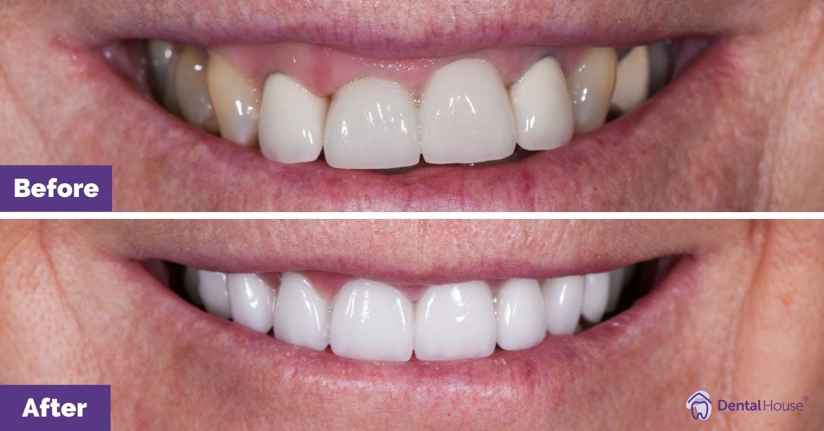 Dental House Group |Sharon B Smile Makeover Journey