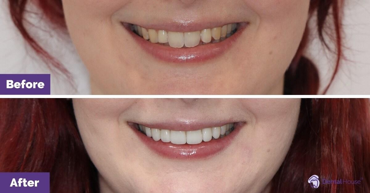 Dental-House-Group_Elisa-Porcelain-Crown-Veneers