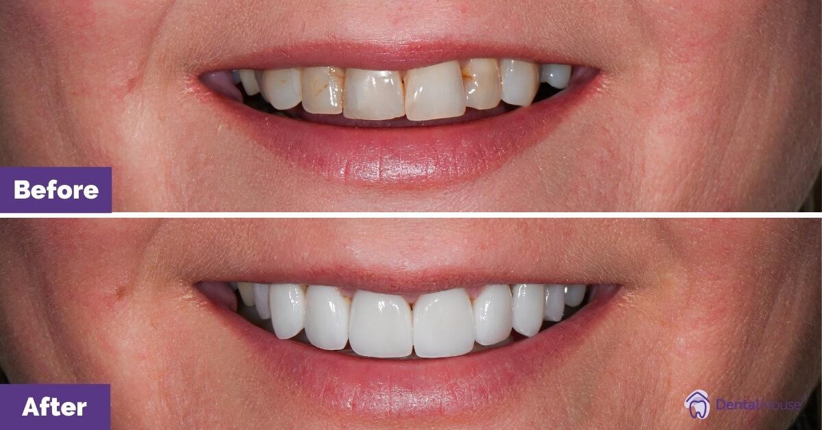 Dental-House-Group_Zoe_Smile-Makeover-Journey