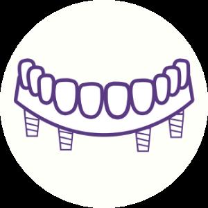 All-On-4 Icon Dental House Melton