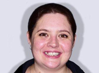 Challenges: Missing Teeth